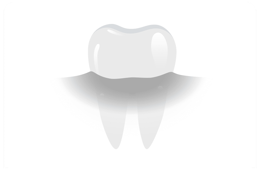Dental_X-rays_and_Cone_Beam_CT_Scan_hod